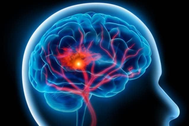 cerebro y supervivencia